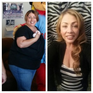 Maria Prieto Gastric Sleeve Success Story